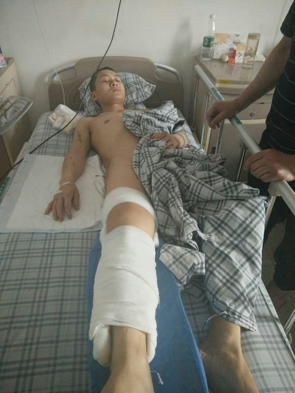 半夜遭遇抢劫 巴中小伙被打成重伤
